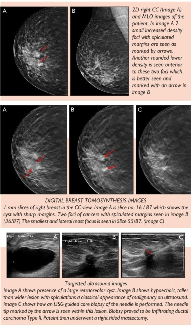 Breast Imaging At Star