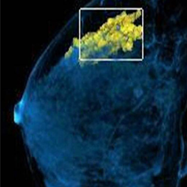 Star Imaging and Research Centre Breast & Women Imaging