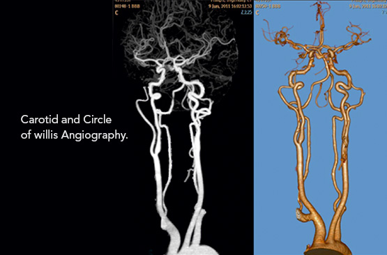 Star Imaging and Research Centre Angiography